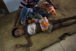 Rohingya's Wounded Children in Bangladesh